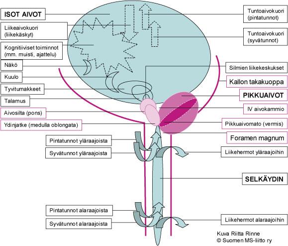 Chiari 1 malformaatiossa todetaan aivojen takakuopan ahtaus ja sen seurauksena pikkuaivojen työntymistä selkäydinkanavaan.