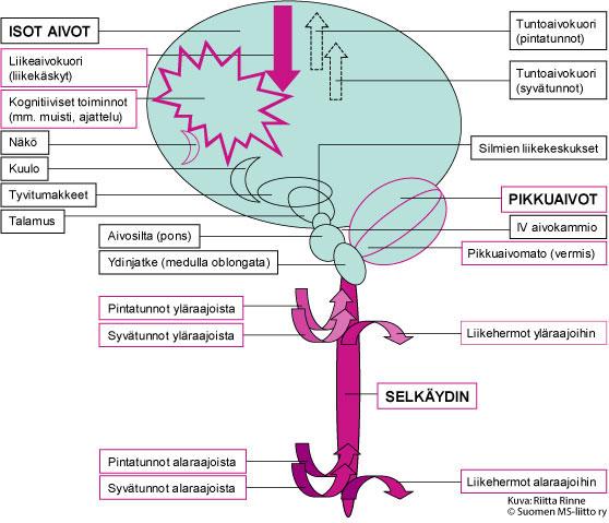 Monioireisissa HSP-sairauksissa kävelyvaikeudet ovat samantapaisia kuin yksioireisissa HSP-sairauksissa, mutta lisäksi todetaan vaihtelevasti muita neurologisia oireita.