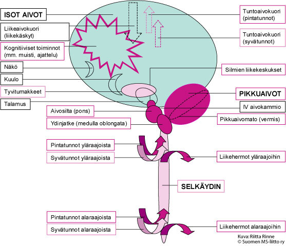 """alt=""""SCA2 aiheuttaa aina muutoksia isojen aivojen kognitiivisiin toimintoihin sekä pikkuaivoihin, aivosiltaan, ydinjatkeeseen, ylä- ja alaraajojen pintatuntoihin sekä ylä- ja alaraajojen liikehermoihin."""""""