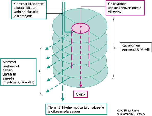 Hermot tulevat selkäytimeen ja poistuvat sieltä selkäydintasojen mukaisesti. Syrinx ulottuu tavanomaisesti useamman kuin yhden selkäydinsegmentin alueelle. Mikäli syrinx todetaan kaulaytimen alueella, sen aiheuttamat oireet heikentävät yläraajojen toimintoja.